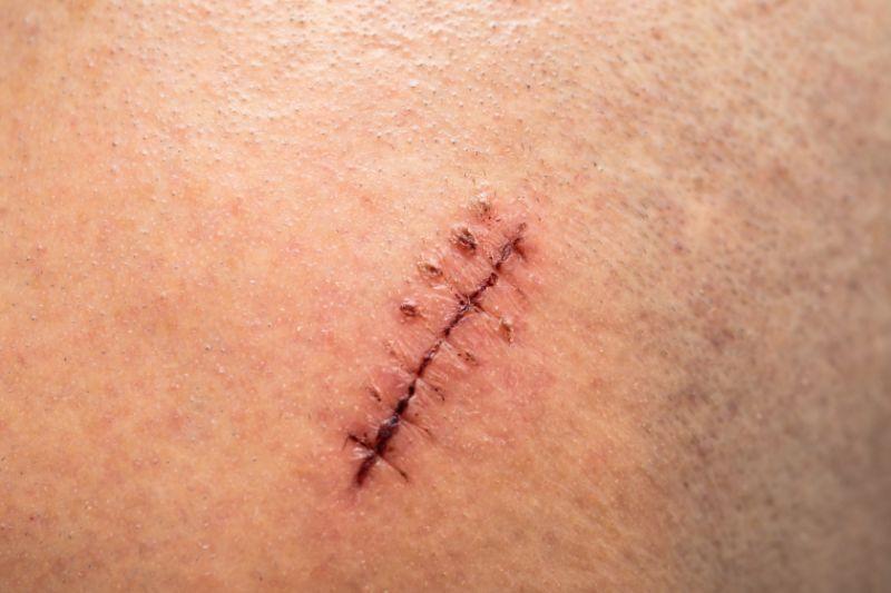 Las cicatrices de mi vida
